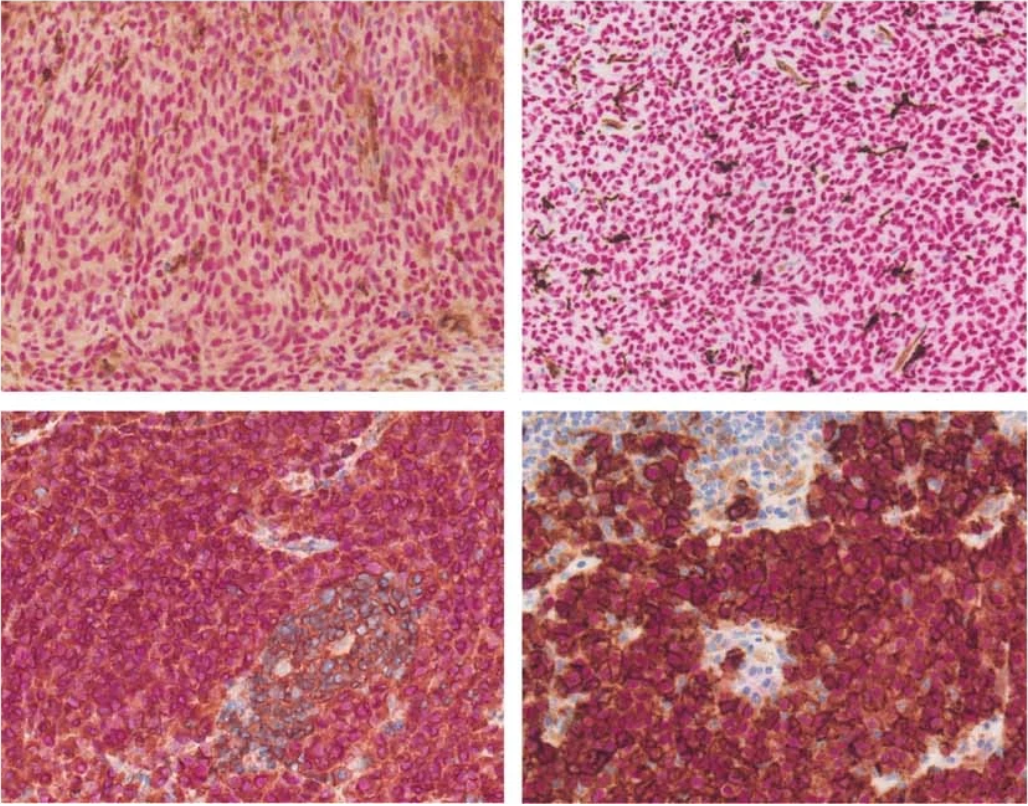 Dual chromogenic immunohistochemical staining of FFPE tumor samples